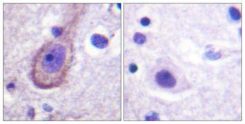Phospho-KCNQ3 (Thr246) Antibody (PA5-38662)