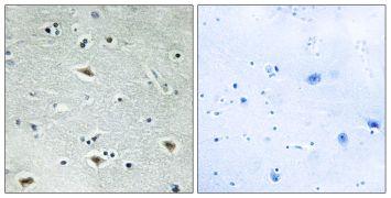 MTG16 Antibody (PA5-38665)