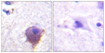 MAP4 Antibody (PA5-38671)