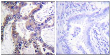 Phospho-MKP-1 (Ser359) Antibody (PA5-38677)