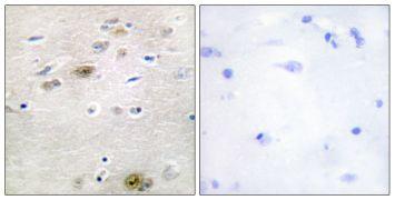 TRA2A Antibody (PA5-38678)