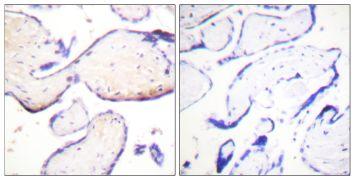 Phospho-Ezrin/Radixin/Moesin (Thr558) Antibody (PA5-38679)