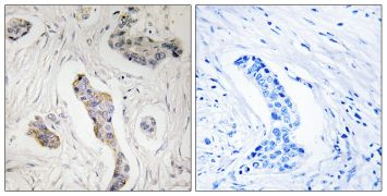 KIAA0100 Antibody (PA5-38680)