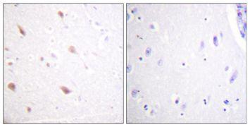 Phospho-NIFK (Thr234) Antibody (PA5-38682)