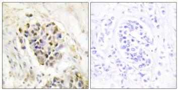 TRAP220 Antibody (PA5-38687)