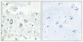 DOK7 Antibody (PA5-38694)
