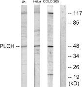 AGPAT9 Antibody (PA5-38698)