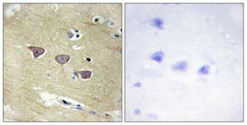 CaMKV Antibody (PA5-38733)