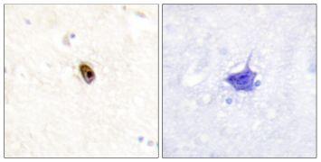 Phospho-Aurora C (Thr236, Thr202) Antibody (PA5-38740)