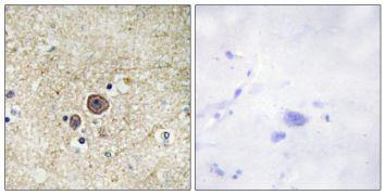 Phospho-alpha Catenin (Ser641) Antibody (PA5-38750)