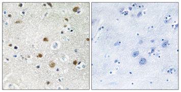 TFIIIB90 Antibody (PA5-38755)