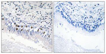 MED12 Antibody (PA5-38756)