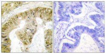 Phospho-FANCA (Ser1149) Antibody (PA5-38763)