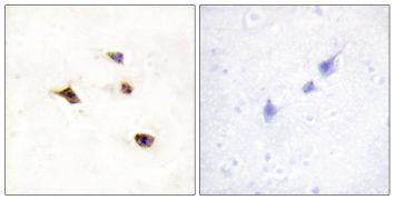 IP6K3 Antibody (PA5-38767)