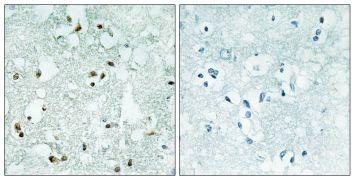 ELAC2 Antibody (PA5-38774)