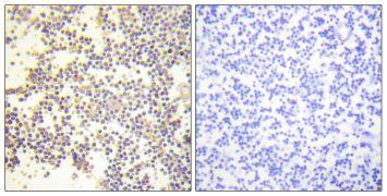 Phospho-p47phox (Ser328) Antibody (PA5-38777)