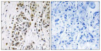 XRN2 Antibody (PA5-38789)