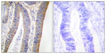 Phospho-p47phox (Ser359) Antibody (PA5-38801)