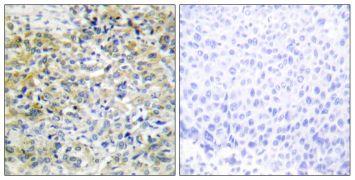 CARKL Antibody (PA5-38822)