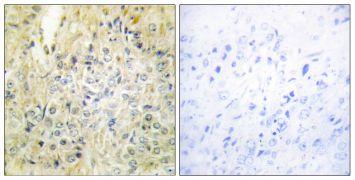 DLEC1 Antibody (PA5-38830)