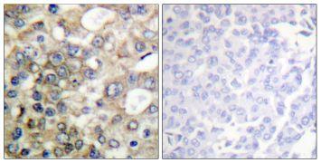 Phospho-MUC1 (Tyr1229) Antibody (PA5-38833)