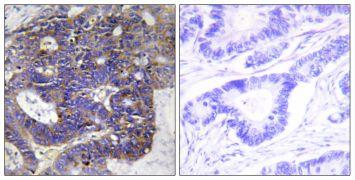 COL4A2 Antibody (PA5-38875)