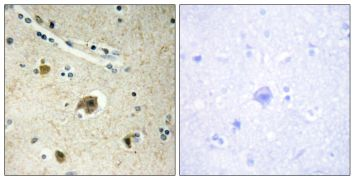 COL4A4 Antibody (PA5-38877)