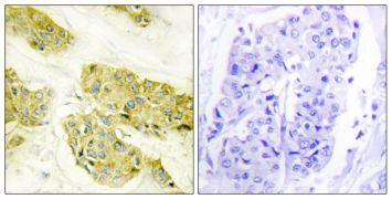 COL5A3 Antibody (PA5-38881)