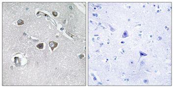 COL11A2 Antibody (PA5-38889)