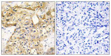 Endostatin Antibody (PA5-38894)