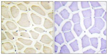 COL20A1 Antibody (PA5-38895)