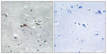CYTL1 Antibody (PA5-38912)