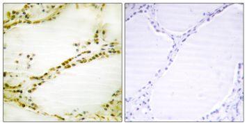 RGS16 Antibody (PA5-38914)