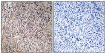 FGF22 Antibody (PA5-38918)