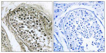 GAB4 Antibody (PA5-38922)