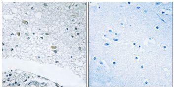 Laminin gamma-3 Antibody (PA5-38939)