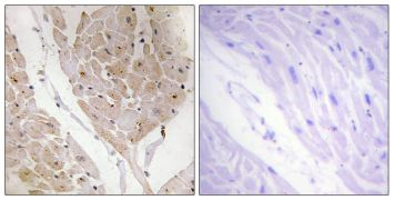 Galectin 2 Antibody (PA5-38940)
