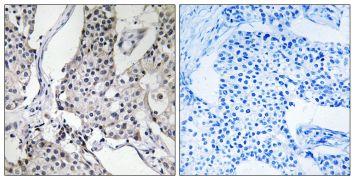 PHLDA3 Antibody (PA5-38942)