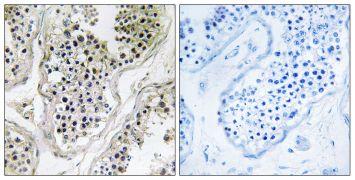 ATXN7L1 Antibody (PA5-39033)