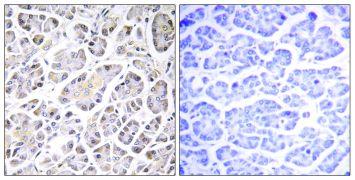 ATP5G3 Antibody (PA5-39035)
