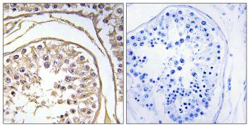 BAGE2 Antibody (PA5-39047)