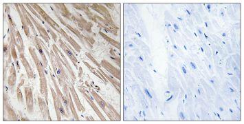 ARPP21 Antibody (PA5-39069)