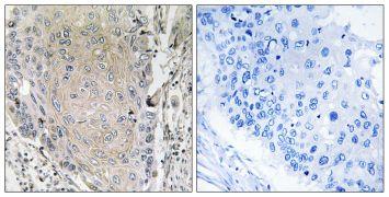 Cerebellin 3 Antibody (PA5-39095)