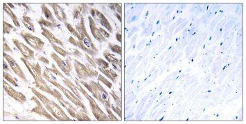 Factor XIII B Antibody (PA5-39110)