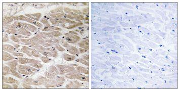CCP2 Antibody (PA5-39124)