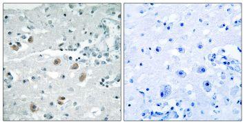 PLA2G4D Antibody (PA5-39126)