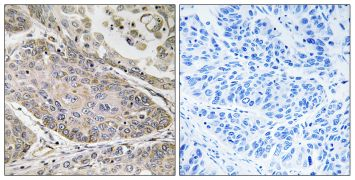 PLA2G4E Antibody (PA5-39127)