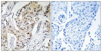 POLE4 Antibody (PA5-39136)