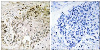 RFX2 Antibody (PA5-39138)