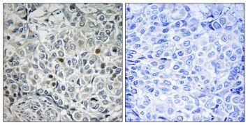 USP53 Antibody (PA5-39216)